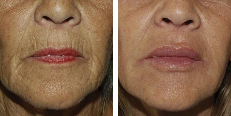 Traitement des lèvres par injection après 3 mois