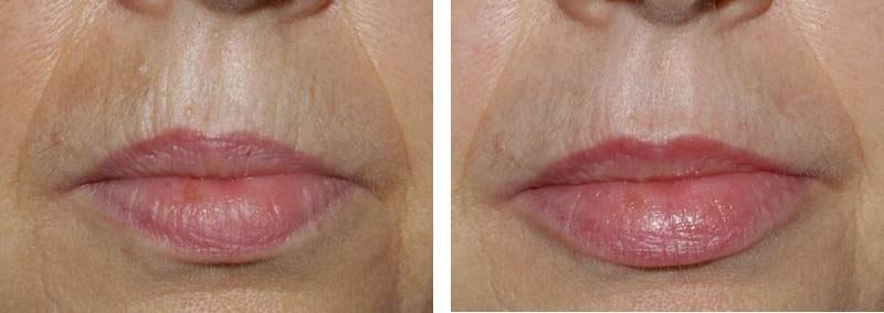 Réjunénation des lèvres par injection photo avant / après