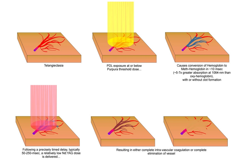 Schéma du principe de fonctionnement du laser vasculaire pour le traitement de la couperose