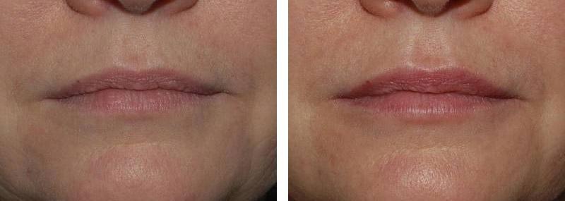 Embellissement des lèvres par injection