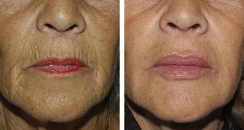 Traitement des lèvres par injection après 1 an