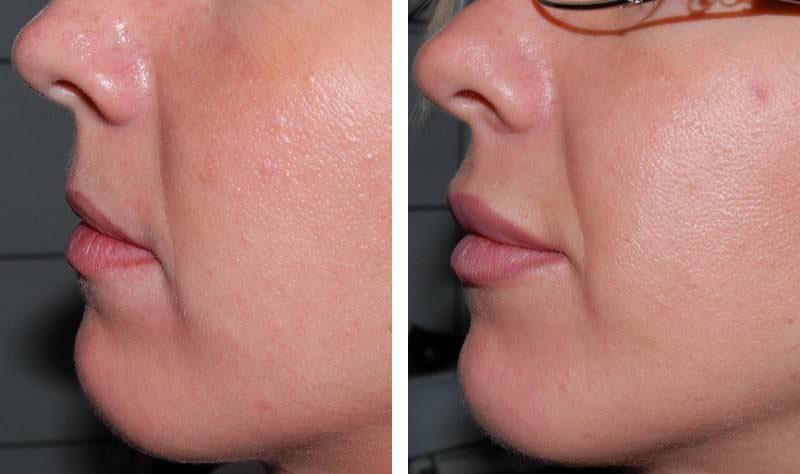 Traitement des lèvres par injections : photos avant / après