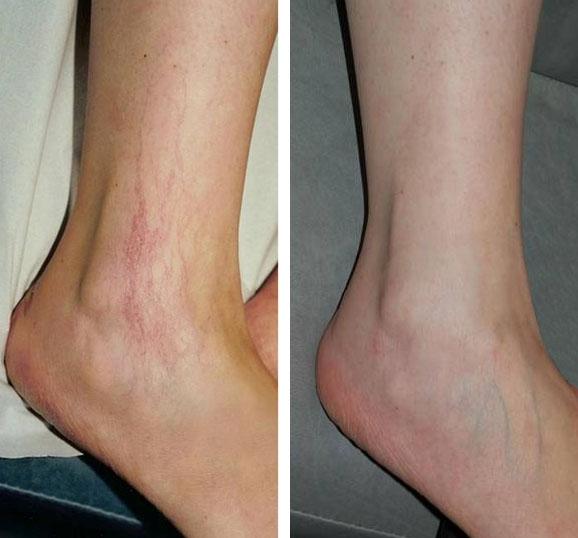 Traitement des varicosités des jambes au laser vasculaire