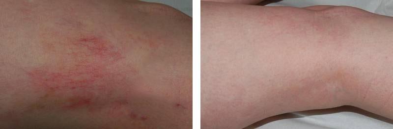 varicosités des jambes : photo avant / après de traitement au laser